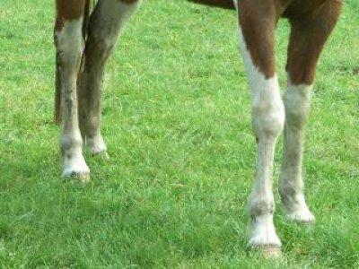 Aftekeningen aan de benen
